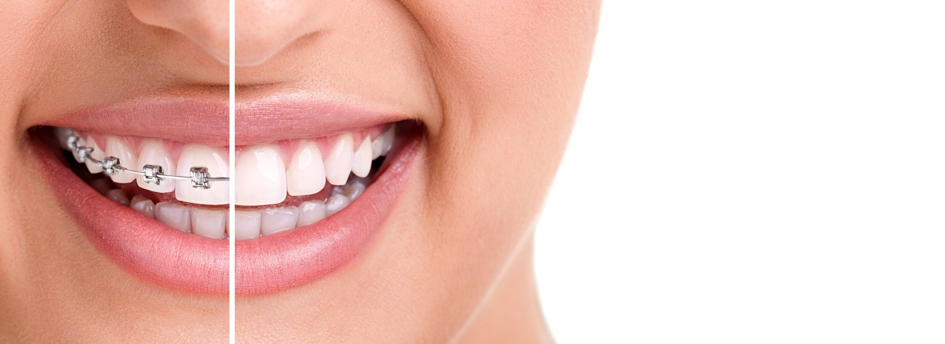 Orthodontist Melbourne