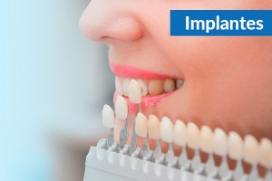 Best Dental implants in Ahmedabad