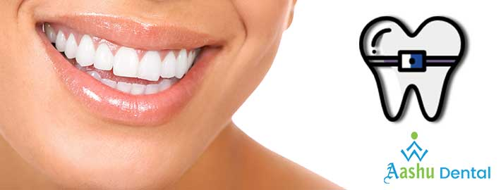 smile makeover treatment Ahmedabad