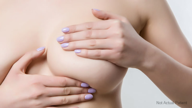 breast implant removal Melbourne