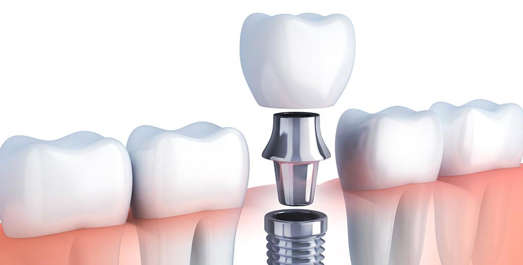 Dental Implants Ahmedabad