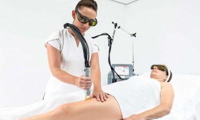 Laser Hair Removal Prahran
