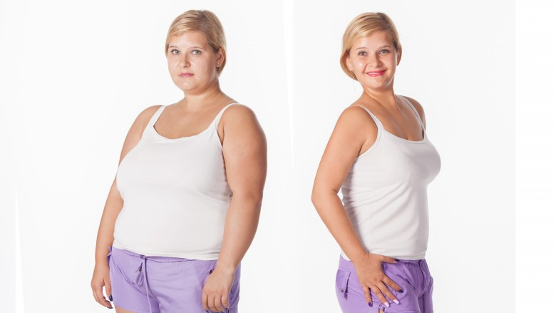 Bariatric Surgery Melbourne