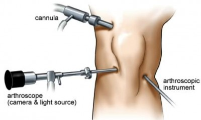 Arthroscopy surgeon in Kenya1