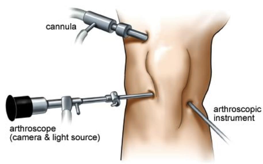 Arthroscopy surgeon in Kenya1