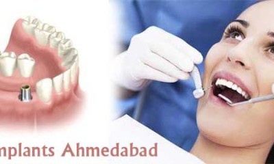 dental implants ahmedabad-2